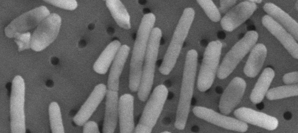 Bacteria in Space Grows in Strange Ways